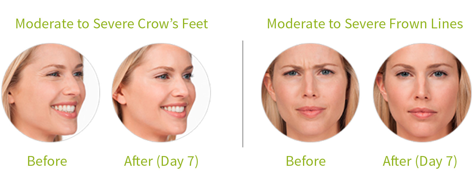 botox southern oregon, botox ashland oregon